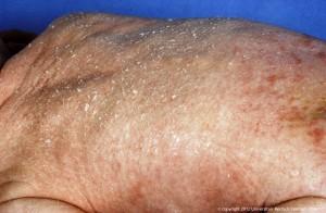 Congenitale-ichthyosiforme-erythrodermie-300x196